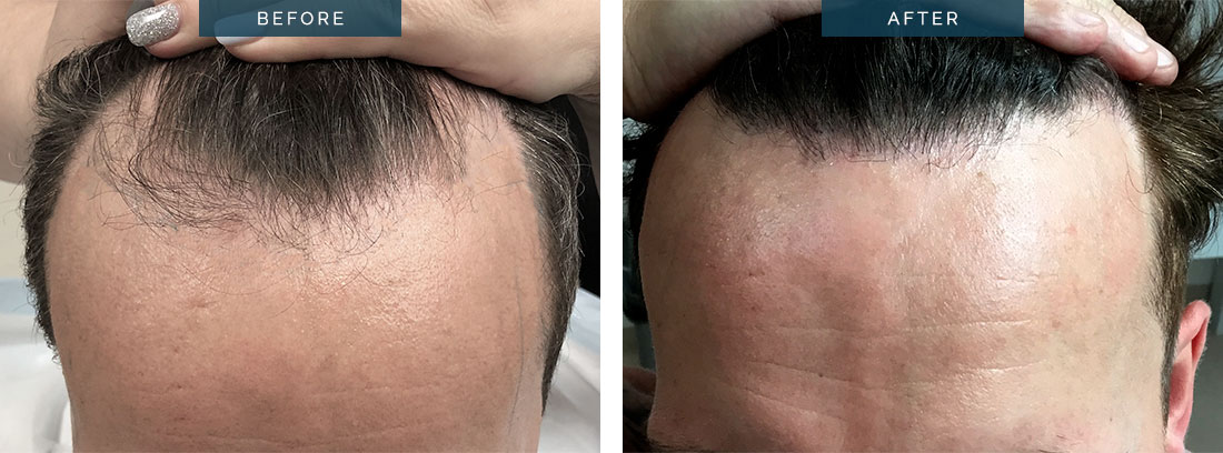 fue hair transplant - before and after - 1400 grafts - patient 1a - image 002 2x size