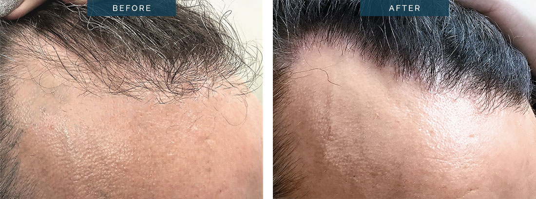 hair transplant before and after - 14oo Grafts FUE after 8 months - image 002
