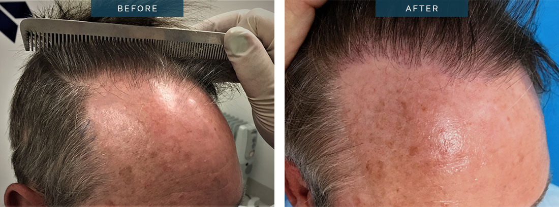 hair transplant before and after - 1600 Grafts FUE 46 y.o. male - patient 001c - image002