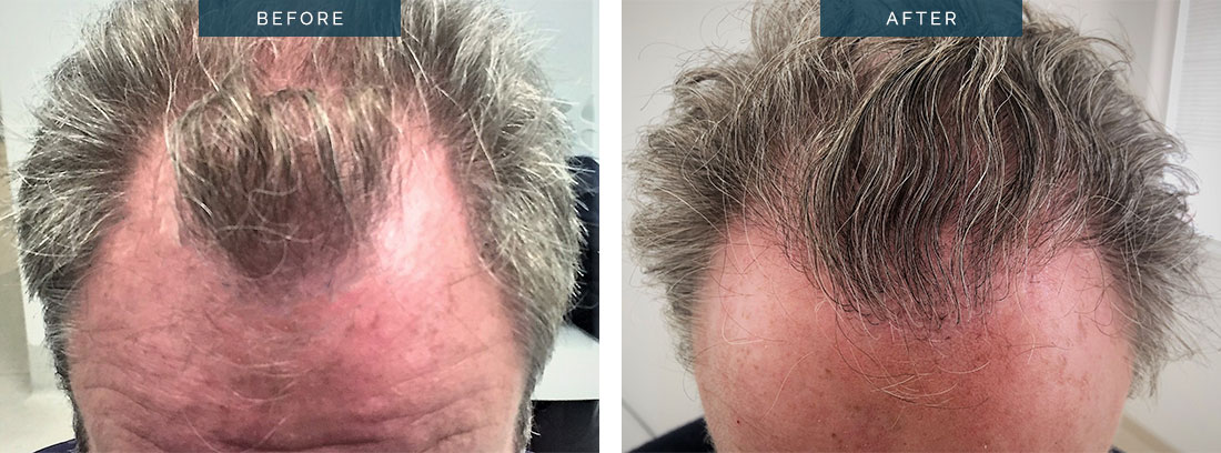 hair transplant before and after - 2400 Grafts FUT after 9 months in a middle aged male - patient 002b