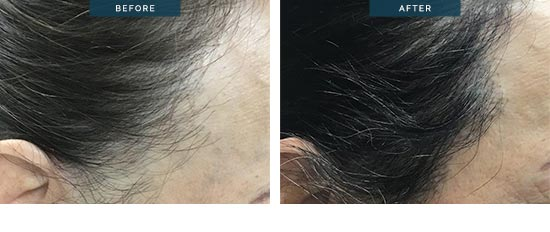 hair transplant before and afters - female 1800 FUT - patient7b - image 002