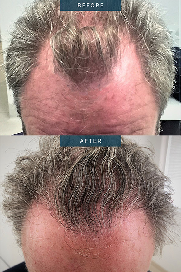 male hair transplants - dr spano melbourne - before and after image