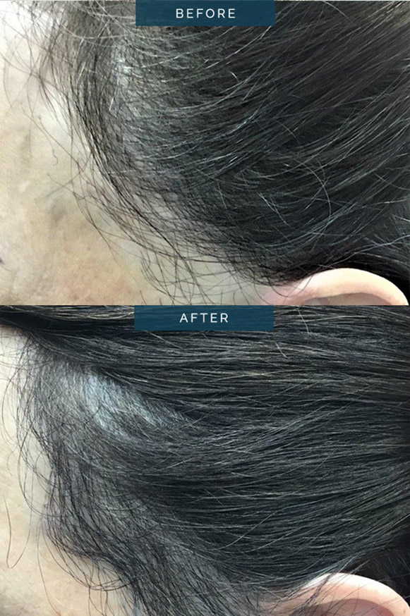 hair transplant female 1800 FUT - patient003 - before and after image 002
