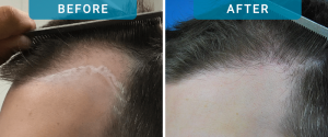 hair loss treatment in men hair transplants in men