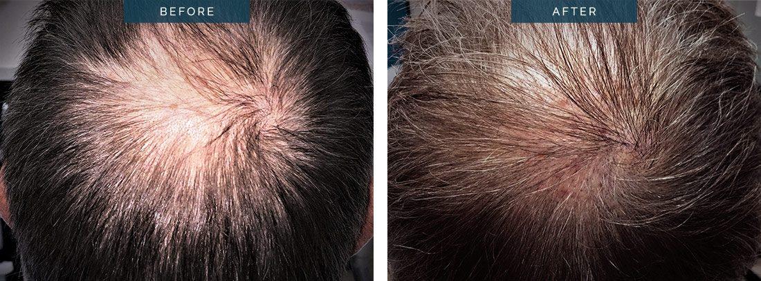 Hair transplant 700 grafts FUE , crown, 10 months.