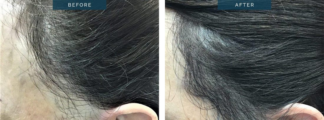 FUE Transplant Melbourne, clinic patient before & after the procedure, left side view