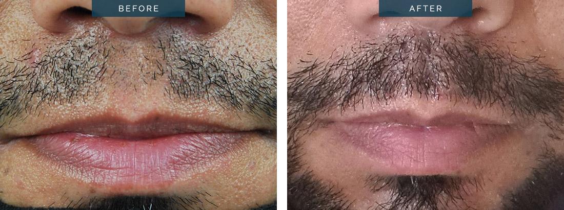 FUE hair transplant, DHI transplant Melbourne, Moustache hair transplant