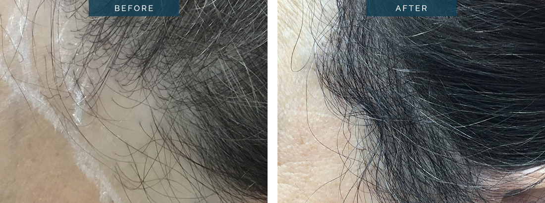 Female hair loss before & after