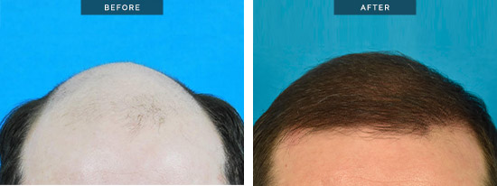 Hair Transplants Melbourne, patient 11 before & after hair transplant surgery