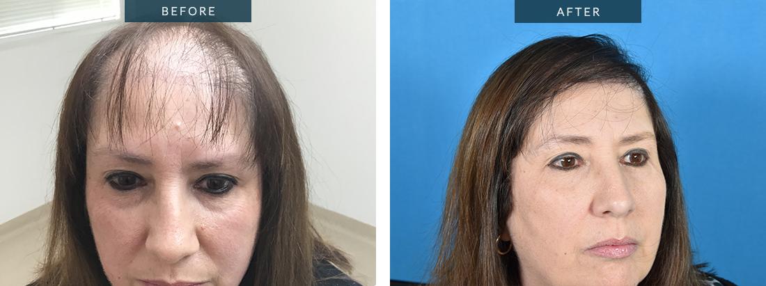 Female Hair Transplant Hairline Lowering eyebrows